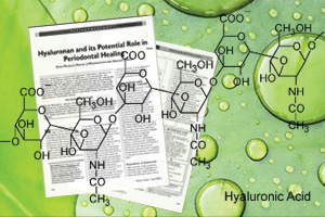 Hyaluronan and its potential role in periodontal healing.